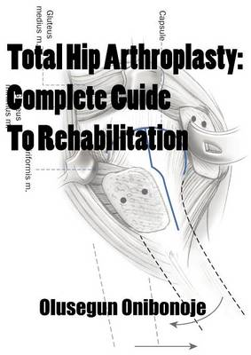 Total Hip Arthroplasty: Complete Guide To Rehabilitation (Paperback)