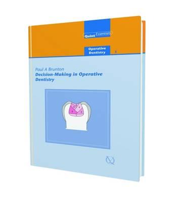 Decision-making in Operative Dentistry - Quintessentials: Operative Dentistry v. 1 (Hardback)