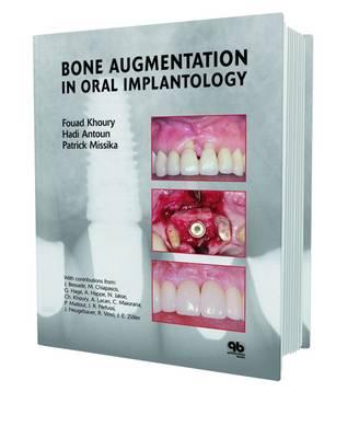 Bone Augmentation in Oral Implantology (Hardback)