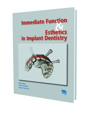 Immediate Function and Esthetic in Implant Dentistry (Hardback)