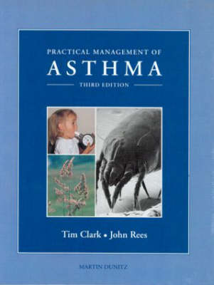 Practical Management of Asthma (Hardback)