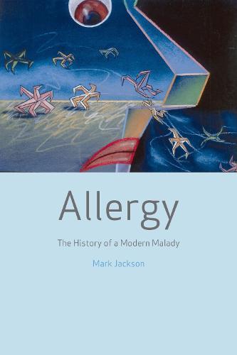Allergy: The History of a Modern Malady (Hardback)
