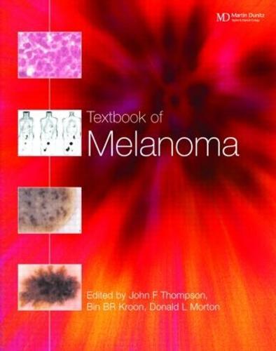 Textbook of Melanoma: Pathology, Diagnosis and Management (Hardback)