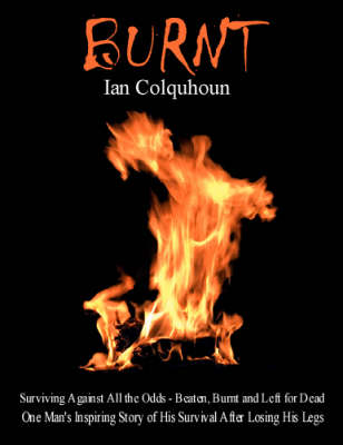 Burnt: Surviving Against All the Odds - Beaten, Burnt and Left for Dead. One Man's Inspiring Story of His Survival After Losing His Legs (Paperback)
