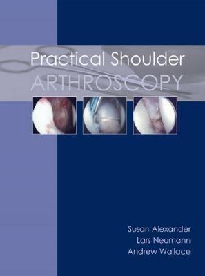 Practical Shoulder Arthroscopy (Paperback)