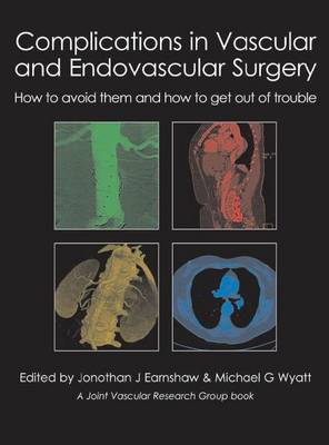 Complications in Vascular & Endovascular Surgery: How to Avoid Them & How to Get Out of Trouble (Hardback)
