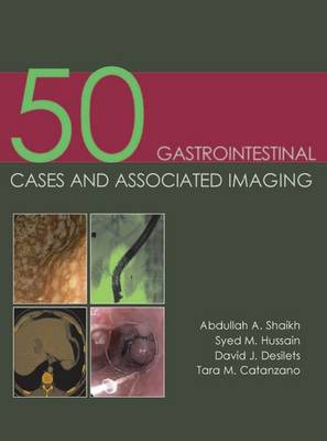 50 Gastrointestinal Cases & Associated Imaging (Paperback)
