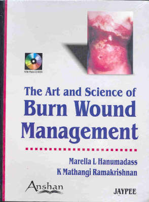 Art and Science of Burn Wound Management (Hardback)