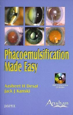 Phacoemulsification Made Easy - Made Easy (Paperback)