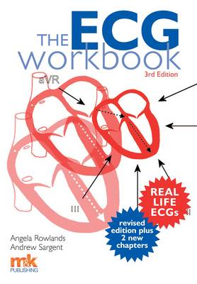 The ECG Workbook (Paperback)