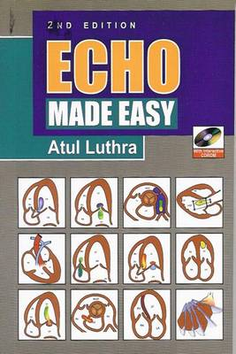 Echo Made Easy (Paperback)