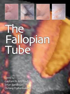 The Fallopian Tube (Hardback)