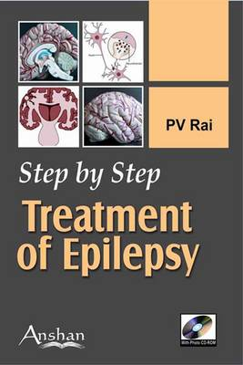 Step by Step Treatment of Epilepsy - Step by Step (Paperback)