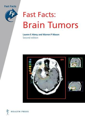Fast Facts: Brain Tumors (Paperback)