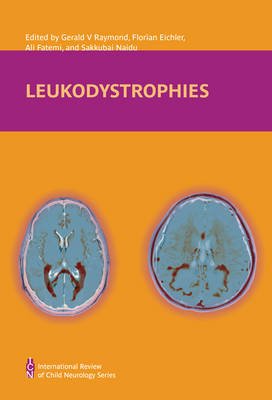Leukodystrophies - International Child Neurology Association (Hardback)