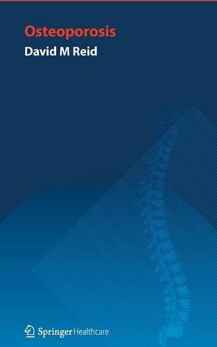 Handbook of Osteoporosis (Paperback)