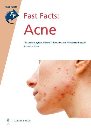 Fast Facts: Acne (Paperback)