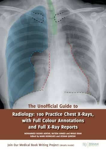 The Unofficial Guide to Radiology: 100 Practice Chest X-Rays - Unofficial Guides to Medicine (Paperback)