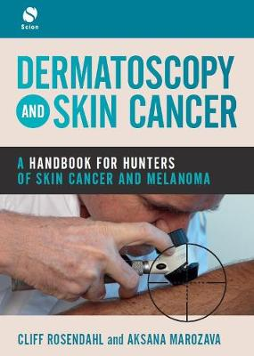 Dermatoscopy and Skin Cancer: A handbook for hunters of skin cancer and melanoma (Paperback)