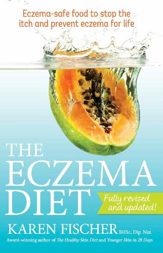The Eczema Diet: Eczema-safe Food to Stop the Itch and Prevent Eczema for Life (Paperback)