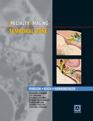 Specialty Imaging: Temporal Bone: Published by Amirsys (R) (Hardback)