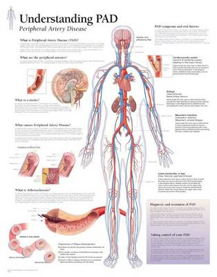 Understanding PAD Paper Poster (Poster)