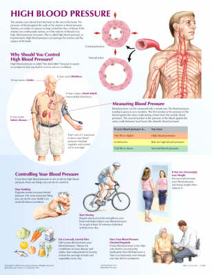 High Blood Pressure Chart - Netter Charts (Poster)