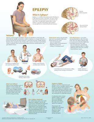 Epilepsy Chart - Netter Charts (Poster)