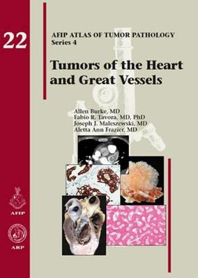Tumors of the Heart and Great Vessels - AFIP Atlas of Tumor Pathology, Series 4, (Hardback)