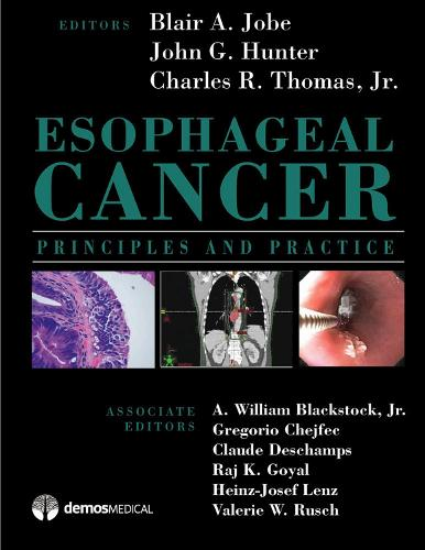 Esophageal Cancer: Principles and Practice (Hardback)