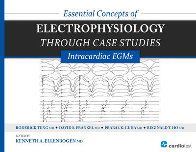 Essential Concepts of Electrophysiology Through Case Studies: Intracardiac EGMs (Paperback)