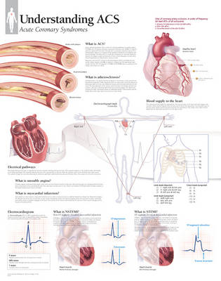 Understanding ACS (Acute Coronary Syndrome) Paper Poster (Poster)