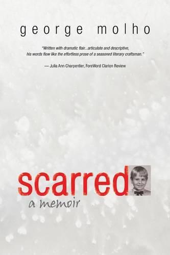 Scarred: A Memoir (Paperback)