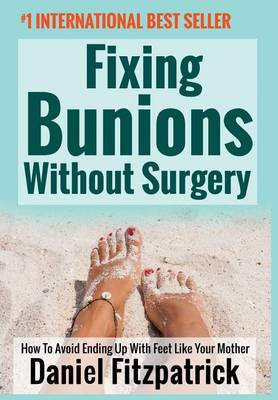 Fixing Bunions Without Surgery: How To Avoid Ending Up With Feet Like Your Mother (Hardback)