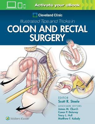Cleveland Clinic Illustrated Tips and Tricks in Colon and Rectal Surgery (Paperback)