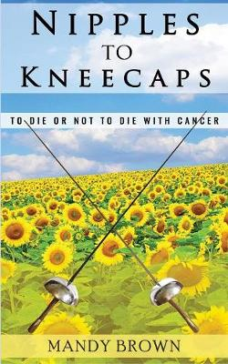 Nipples To Kneecaps: To Die Or Not To Die With Cancer (Paperback)