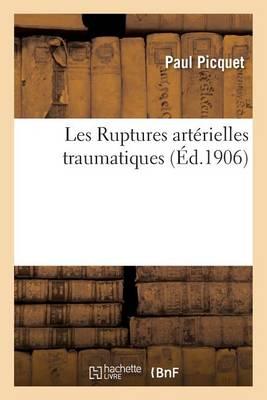 Les Ruptures Art�rielles Traumatiques - Sciences (Paperback)