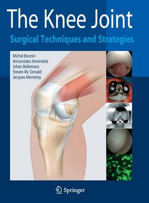 The Knee Joint: Surgical Techniques and Strategies (Hardback)