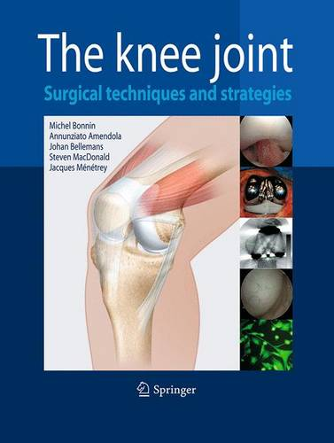 The Knee Joint: Surgical Techniques and Strategies (Paperback)