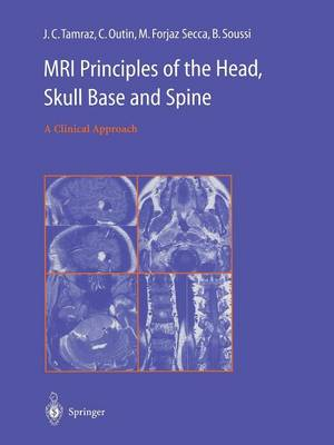 MRI Principles of the Head, Skull Base and Spine: A Clinical Approach (Paperback)