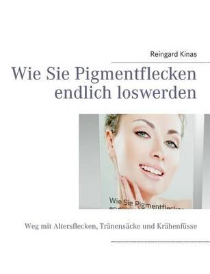 Wie Sie Pigmentflecken Endlich Loswerden (Paperback)