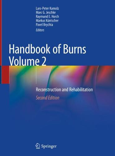 Handbook of Burns Volume 2: Reconstruction and Rehabilitation (Hardback)