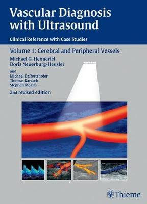 Vascular Diagnosis with Ultrasound: Clinical Reference with Case Studies Volume 1: Cerebral and Peripheral Vessels (Hardback)