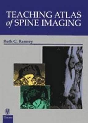 Teaching Atlas of Spine Imaging - Teaching Atlas S. (Hardback)