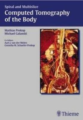 Spiral and Multislice Computed Tomography of the Body (Hardback)