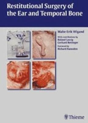 Restitutional Surgery of the Ear and the Temporal Bone (Hardback)