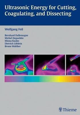 Ultrasonic Energy for Cutting, Coagulating, and Dissecting (Hardback)