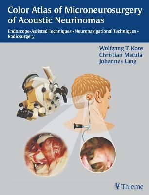 Color Atlas of Microsurgery of Acoustic Neurinomas: Endoscope-Assisted Techniques - Neuronavigational Techniques - Radiosurgery (Hardback)