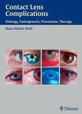 Contact Lens Complications: Etiology, Pathogenesis, Prevention, Therapy (Hardback)