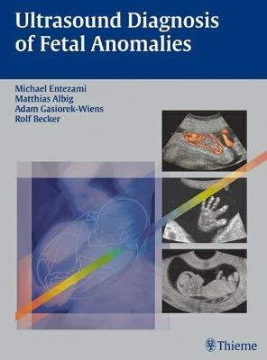 Ultrasound Diagnosis of Fetal Anomalies (Hardback)